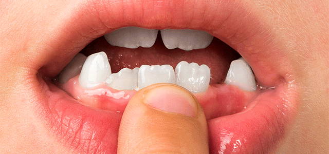 Is Your Teen Complaining about the Shape of Their Teeth?