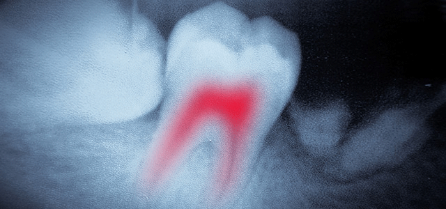 Dental X-Rays: Are They Safe and Necessary?