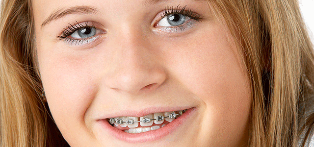 How Soon Should Your Pre-Teen See the Orthodontist?