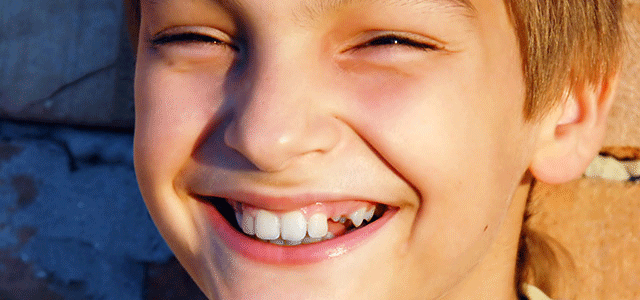 Is Your Child Missing Some Permanent Teeth? What Happened?