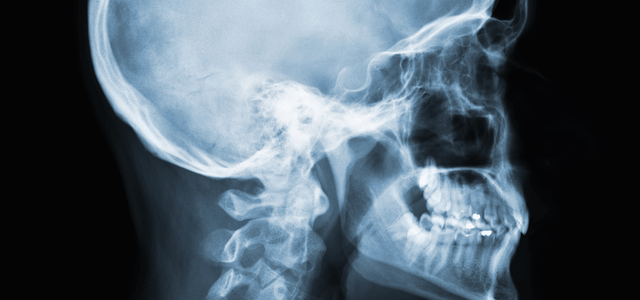 What is a CEPH X-ray, and Do I Need One?