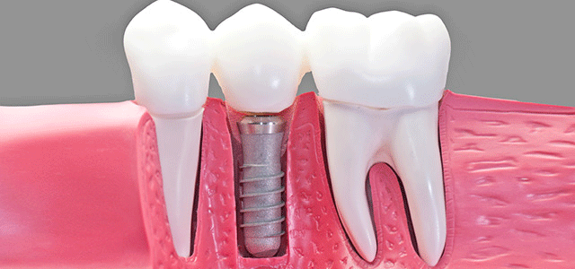 Dental Implants - Getting to the Root of Things