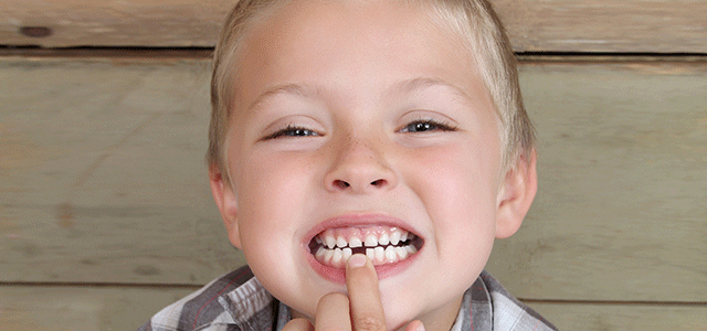 My Child is Missing a Tooth. What are Our Options?