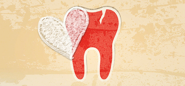 The Link between Gum Disease and Your Heart: Fact or Fiction?